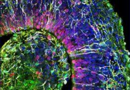Lab-Grown Minibrains Show Activity Similar to Babies' Brains